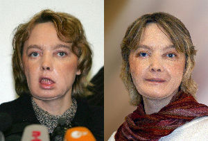 Combo of pictures of French Isabelle Dinoire, 39, who underwent the world's first facial face transplant. When Isabelle Dinoire received the transplant, doctors warned she might never be able to kiss again. Now the 40-year-old French woman can eat, speak and smile normally, according to 'Isabelle's Kiss,' a book...