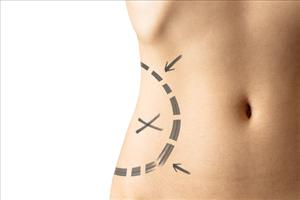 Some 450,000 liposuction procedures are carried out in the US every year.
