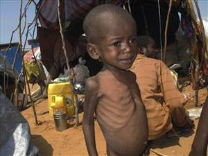 A malnourished child from southern Somalia stands in front of a makeshift shelter in Mogadishu, Somalia.