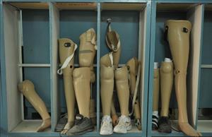 Artificial legs are displayed at an International Committee of the Red Cross hospital.