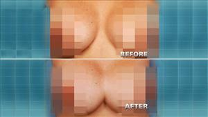 The botched surgery left Rodriguez's breast joined together.