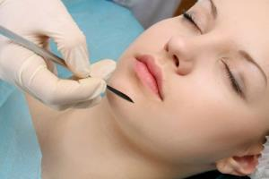 Chin implants are the fastest-growing type of plastic surgery in the US.