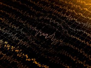 File image of brain waves.