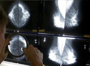 A radiologist uses a magnifying glass to check mammograms for breast cancer in this file photo.