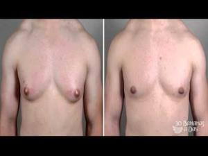 In the UK, surgery to reduce male breasts is surging, more than doubling in five years.