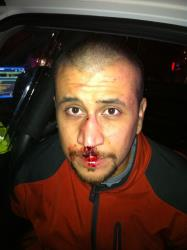 George Zimmerman is shown on the night of Feb. 26, 2012.