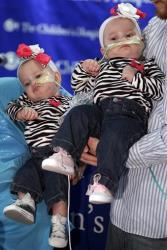Shellie and Greg Tucker, parents of Allison, left, and Amelia, present their nine-month-old girls who were formerly conjoined twins at Children's Hospital of Philadelphia, Dec. 20, 2012.