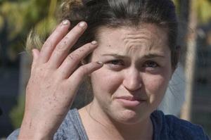 Kyndall Jack shows her injured hand outside UCI Medical Center in Orange, Calif.