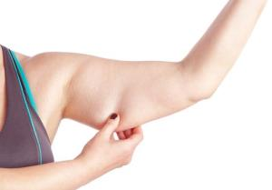 The cosmetic surgery of the moment: arm-lifts.