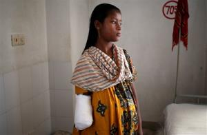 Anna, 16, who worked as a helper at Rana Plaza, was trapped for 3 days, and had her right hand amputated in order to be rescued, is shown Thursday, May 2, 2013, in Savar, near Dhaka, Bangladesh.