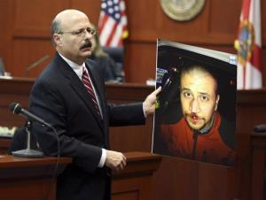 Assistant state attorney Bernie de la Rionda shows a picture of a bloodied George Zimmerman to the jury.