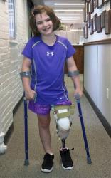 This photo released Thursday, Aug. 15, 2013, by the Richard family shows Jane Richard, 7, who lost part of her left leg in the Boston Marathon bombings on April 15, 2013, walking on a prosthetic.