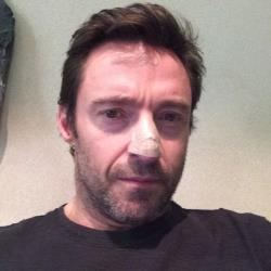 Hugh Jackman says he's been treated for skin cancer.