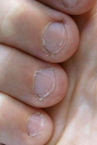 Man Dies Of Heart Attack Caused By Nail Biting