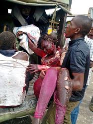 An injured woman is carried to a small truck in Jos, Nigeria yesterday.