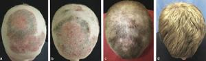 These panels show the patient's head a) before treatmen with tofacitinib, b) two months into treatment, c) five months into treatment, and d) eight months into treatment.