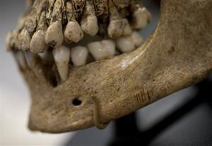 Numerous small knife cuts and punctures in the mandible of  Jane of Jamestown are seen during a news conference at the Smithsonian's National Museum of Natural History in Washington, May 1, 2013.