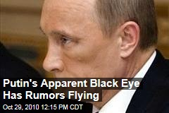 Putin's Apparent Black Eye Has Rumors Flying
