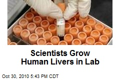 Scientists Grow Human Livers in Lab