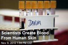 Medical Breakthrough: Own Blood Made From Skin