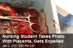 Nursing Student Takes Photo With Placenta, Gets Expelled