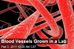 Blood Vessels Grown in a Lab