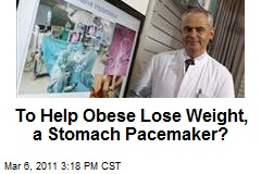 To Help Obese Lose Weight, a Stomach Pacemaker?