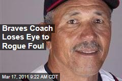 Atlanta Braves Minor League Manager Luis Salazar Loses Eye to Rogue Foul Ball