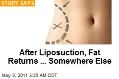 Liposuction Fat Reappears On Arms, Belly