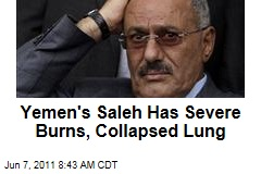 Yemen's Ali Abdullah Saleh Has Collapsed Lung, Severe Burns