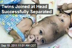 Conjoined Twins Rital and Ritag Gaboura, Joined at Head, Successfully Separated
