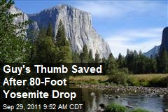 Guy's Thumb Saved After 80-Foot Yosemite Drop