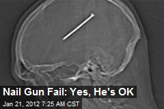 Nail Gun Fail: Yes, He's OK