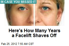Here's How Many Years a Facelift Shaves Off