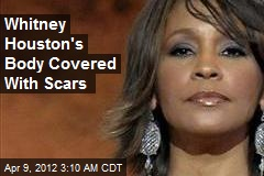 Whitney Houston's Body Covered With Scars