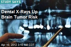 Dental X-Rays Linked to Brain Tumor Risk