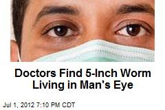 Doctors Find 5-Inch Worm Living in Man's Eye