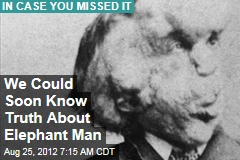 We Could Soon Know Truth About Elephant Man