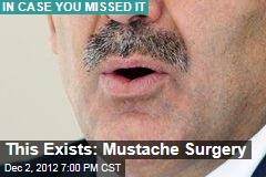 This Exists: Mustache Surgery