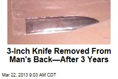 3-Inch Knife Removed From Man's Back—After 3 Years