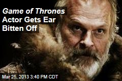 Game of Thrones Actor Gets Ear Bitten Off