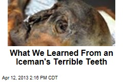 What We Learned From an Iceman's Terrible Teeth