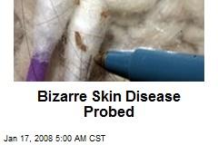 Bizarre Skin Disease Probed