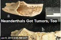 Neanderthals Got Tumors, Too