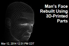 Man's Face Rebuilt Using 3D-Printed Parts