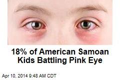 18% of American Samoan Kids Battling Pink Eye