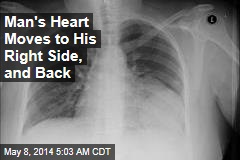 Man's Heart Moves to His Right Side, and Back