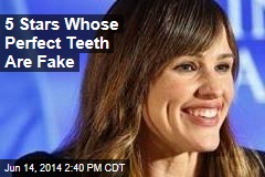 5 Stars Whose Perfect Teeth Are Fake