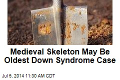 Medieval Skeleton May Be Oldest Down Syndrome Case
