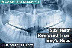 232 Teeth Removed From Boy's Head
